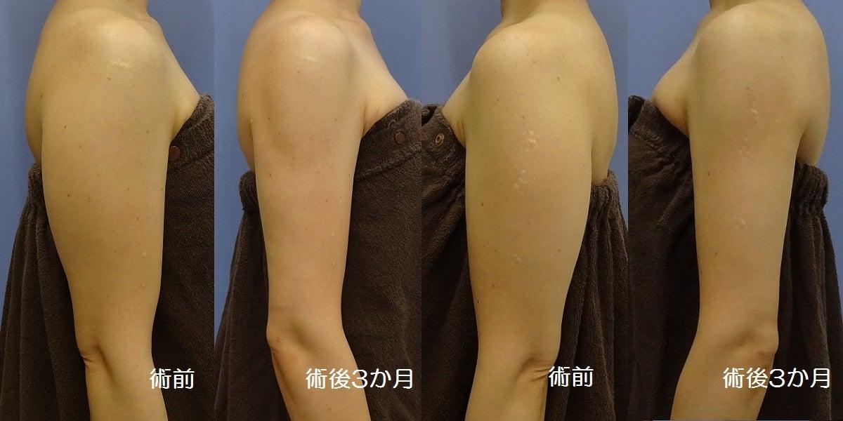続報・二の腕の脂肪吸引 施術後3か月一例