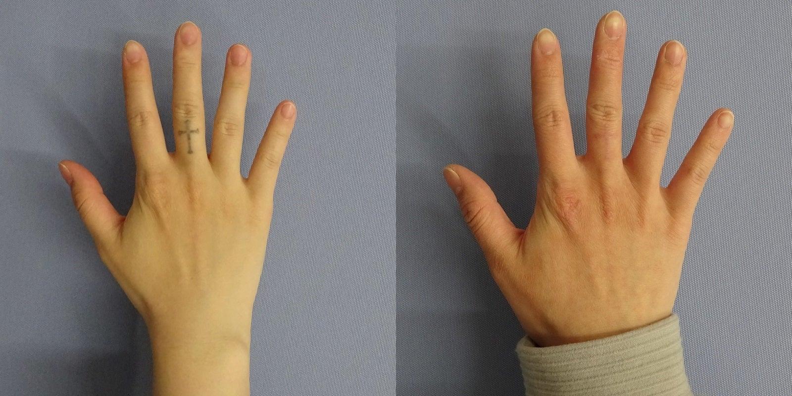 指のタトゥー ピコレーザーによる除去 3回照射後一例