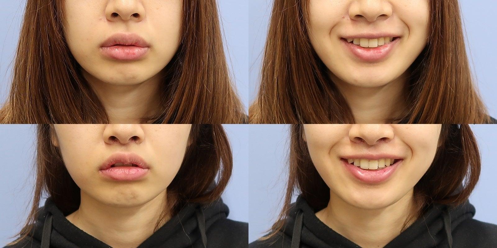 リップリフト(人中短縮術)と上唇縮小術 施術後1週間一例