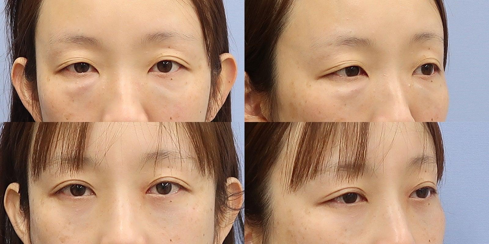 他院目の下ヒアルロン酸後の修整と埋没法二重術 施術後5か月一例
