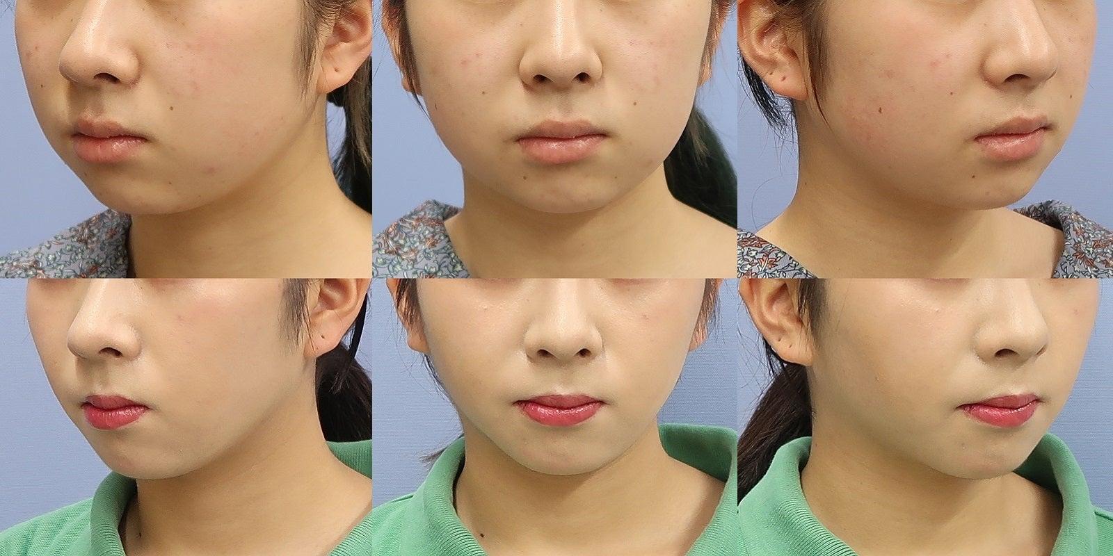 頬・頬骨上・アゴ下の脂肪吸引 3か月後一例