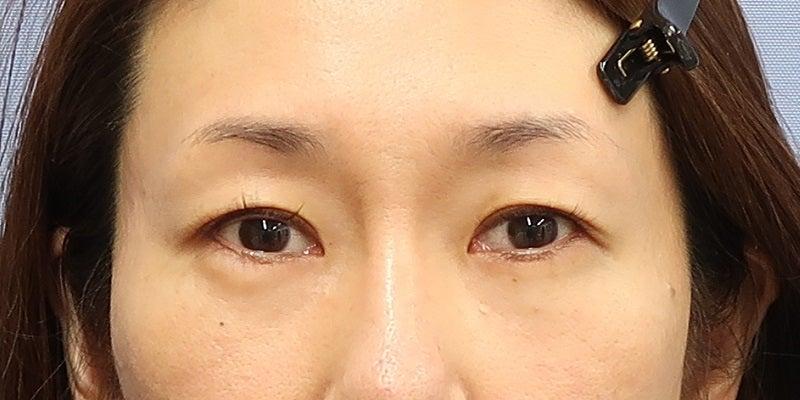 目尻切開・グラマラスライン形成・眉下リフト 施術後1か月一例