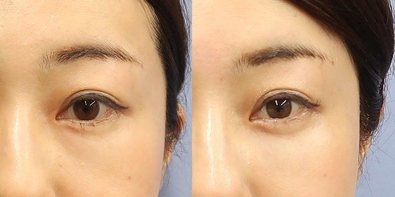 目の下のクマ改善手術 施術直後、翌日、3日後、8日後、15日後、1か月後一例