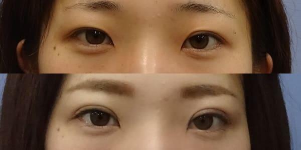 脂肪 取り 瞼 医師が教えるまぶたの脂肪を減らすための3つの方法