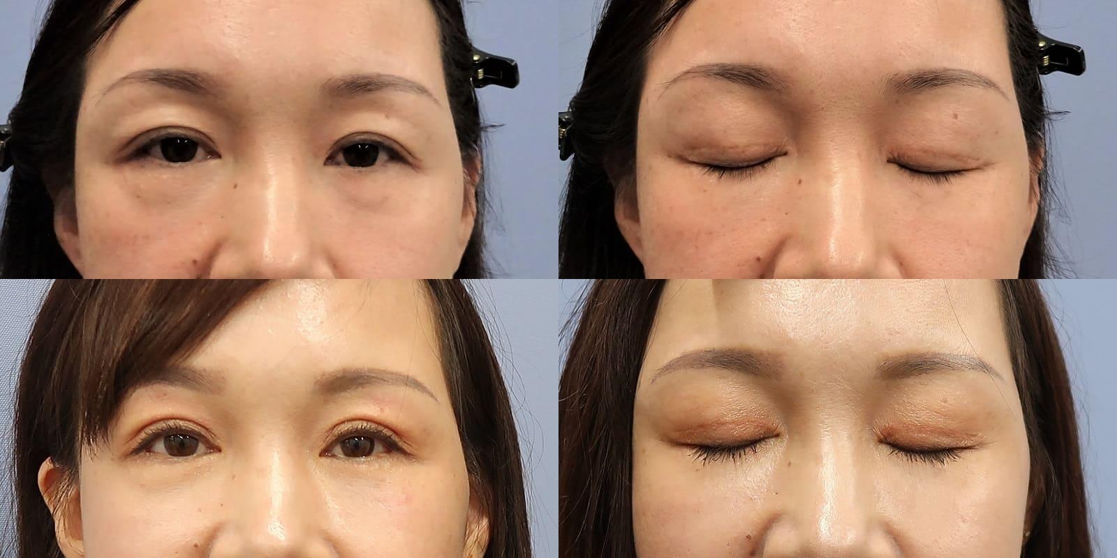 顔 の たるみ 改善 ためして ガッテン 戻れ!シミの消えた肌 冬こそ徹底対策 - NHK